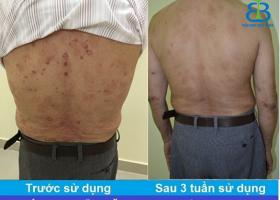 Bệnh nhân vẩy nến Nguyễn Văn Vinh-0989215096-Quận 7- TP.HCM