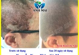 Hình ảnh trước và sau khi sử dụng Kem hoàn da Ami của anh Hái, Cà Mau