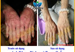 Hình ảnh trước và sau khi sử dụng Kem hoàn da Ami của anh Dũng, định cư Trung Quốc