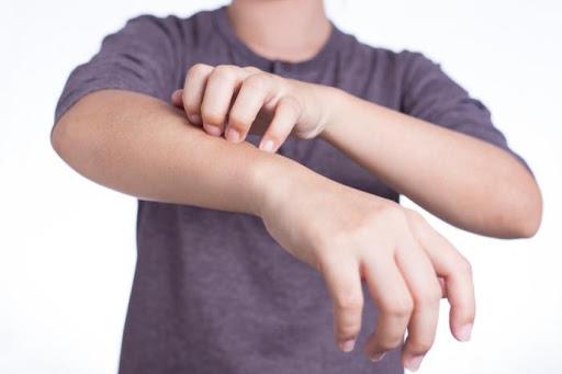 Cách chữa một số dị ứng da tại nhà